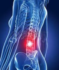 腰椎椎間板ヘルニアは治る?