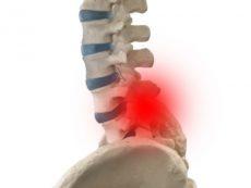 脊柱管狭窄症と腰椎椎間板ヘルニアの簡単な見分け方